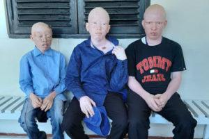 Tre pojkar med albinism visar upp fläckar av hudcancer